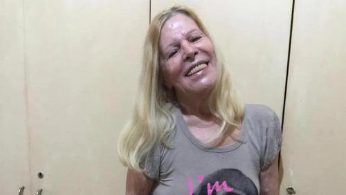 Quadro de saúde de Vanusa permanece estável e cantora continua internada na UTI