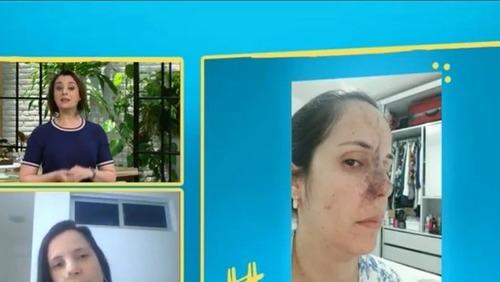 """Dentista tem necrose no nariz após rinomodelação mal-sucedida: """"É importante se informar"""""""