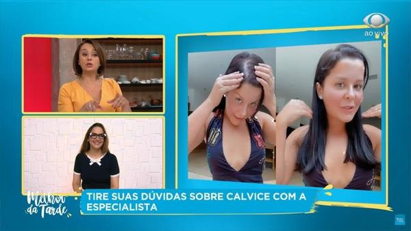 Calvície feminina: especialista tira dúvidas sobre a queda de cabelo em mulheres