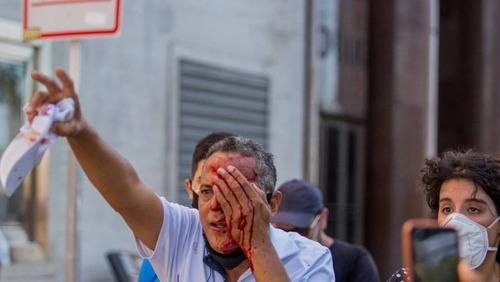 Feridos em protesto contra Bolsonaro vão receber indenização no PE